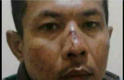 Beredar Foto Anggota Sat Pol PP Lampung Timur Diduga Dianiaya Dirumah Dinas